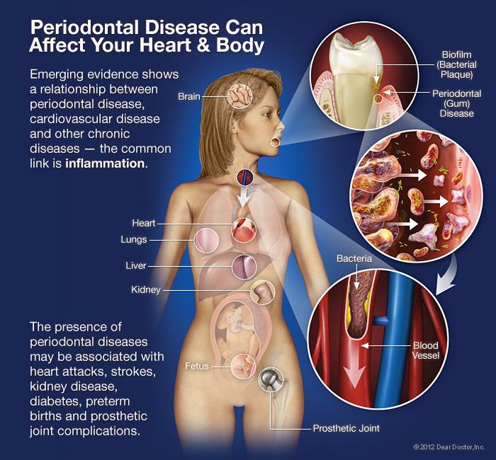 periodonticssec2img