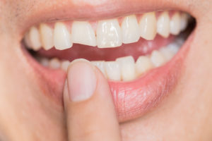 women pointing to her chipped tooth